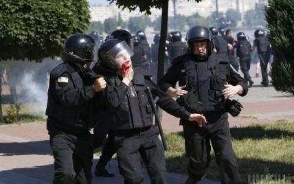 Во время гей-парада в Киеве травмировали пять милиционеров, один из них – в тяжелом состоянии