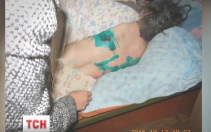В психушках на Черниговщине пациенты спали в собственных испражнениях и работали до 11 часов в сутки