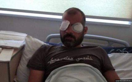 """""""Кричав, але вони не зупинялися"""": у Грузії побитий противникамиЛГБТ операторосліп на одне око"""