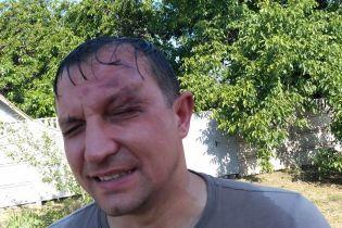 """На Днепропетровщине неизвестные напали на депутата горсовета, объявлен план """"Перехват"""""""