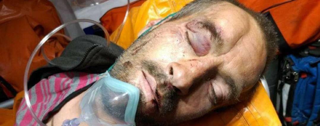 В Киеве на Подоле нашли избитого мужчину без сознания: ищут родных