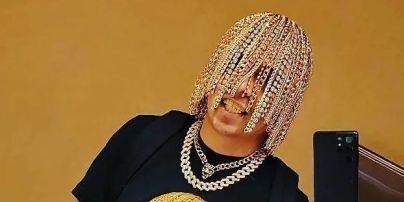 Известный рэпер вживил себе в череп золотые цепи вместо волос