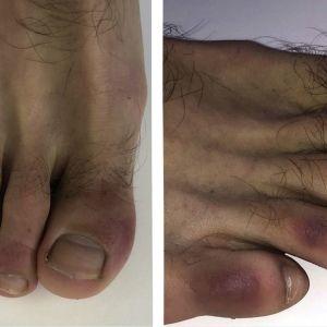 """""""Ковідні пальці"""": вчені назвали новий симптом коронавірусу, який нагадує обмороження"""