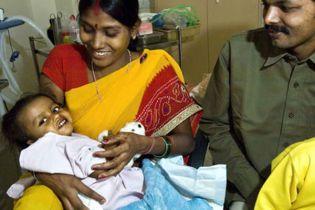 У Непалі народилася дитина з вісьмома кінцівками