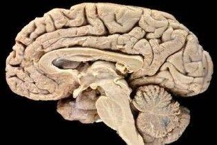 Знайдено ген, який відповідає за ріст пухлини мозку