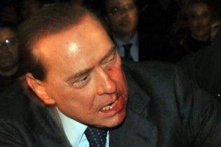 Берлусконі нарахував у себе 35 зубів