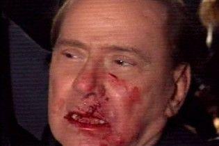 Чоловіка, який напав на Берлусконі, відправили до психіатричної лікарні
