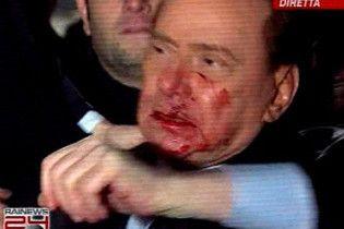 Берлусконі пробачив свого нападника, але вимагає покарати його