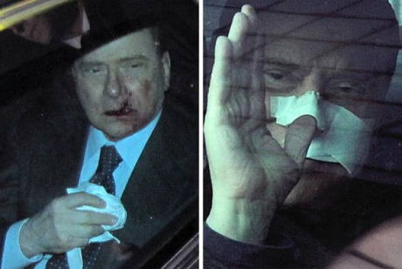 Берлусконі вийшов з лікарні