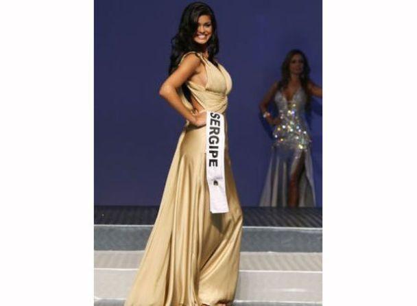"""Моделі, яка мала представляти Бразилію на """"Міс Світу"""", ампутували руки і ноги"""