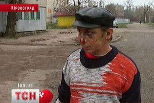Пітбультерьєр погриз чотирьох людей у Кіровограді