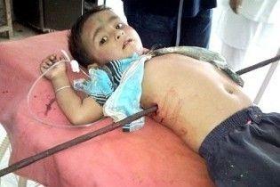 Індійські лікарі врятували хлопчика, якого наскрізь пробило арматурою