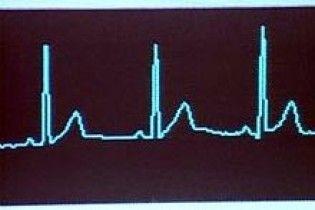Американські лікарі укомплектували кардіостимулятор модулем Wi-Fi