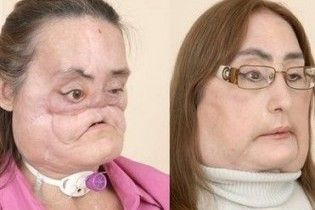 Американка показала громадськості своє пересаджене обличчя