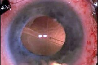 Біонічне око допомогло сліпому знову побачити світло