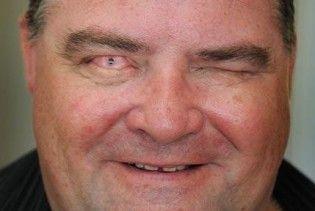 Сліпий чоловік прозрів завдяки імплантованому в око зубу