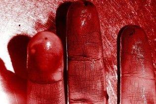 """Жінка ледь не вбила залицяльника: різала огірки і він """"випадково впав на ніж"""""""