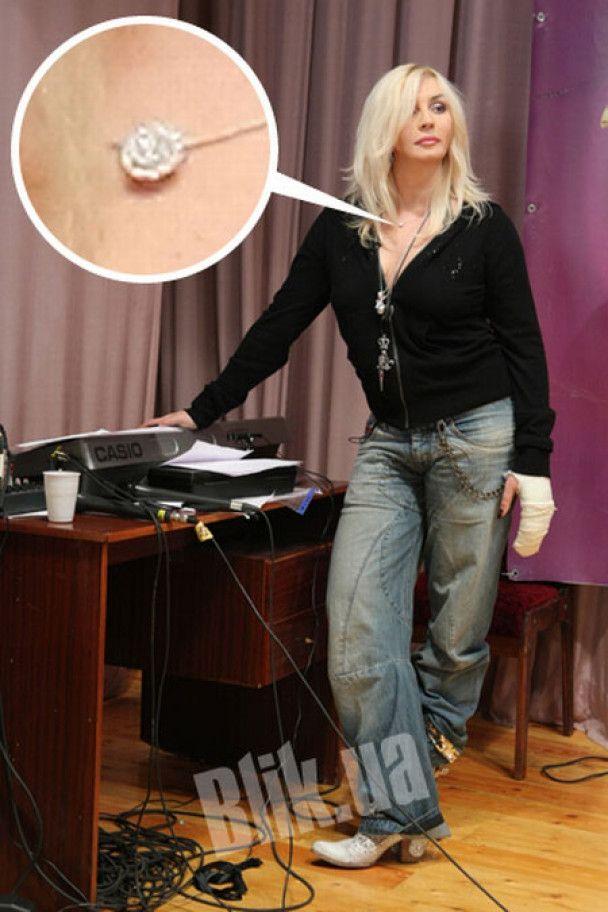 Ірина Білик зламала пальці, тому посуд миє Дікусар