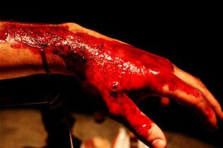 """Захміліла матуся камінням забила 3-річного сина, бо він """"зіпсував їй всю кров"""""""