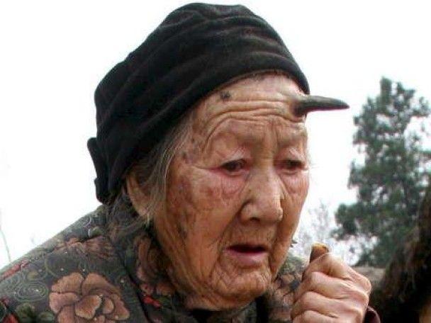 У 101-річної жінки почали рости роги