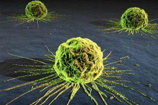 Вчені створили молекулу, яка зупиняє поширення ракових клітин