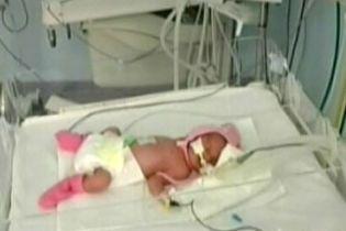 Лікарі врятували 300-грамове немовля