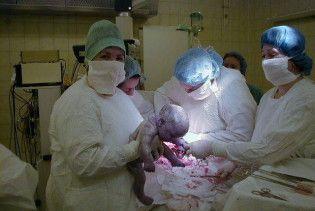 Жінка, яка 7 місяців знаходиться у комі, народила дитину