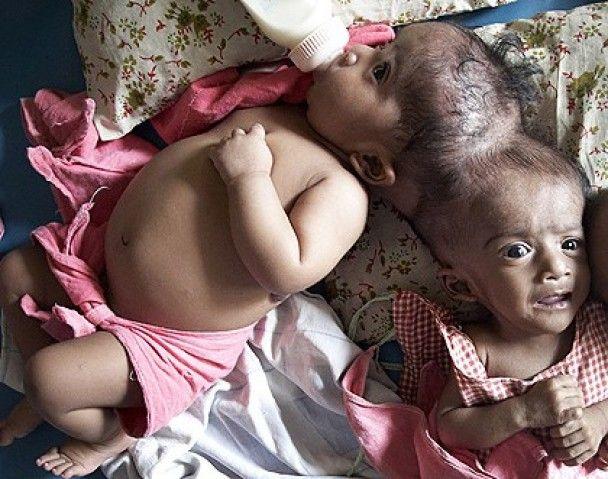 В Австралії розділили сіамських близнюків, котрі зрослися головами