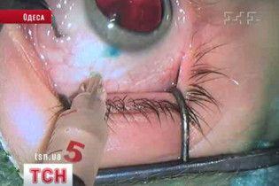 Одеські офтальмологи вперше в світовій практиці вилікували око від раку