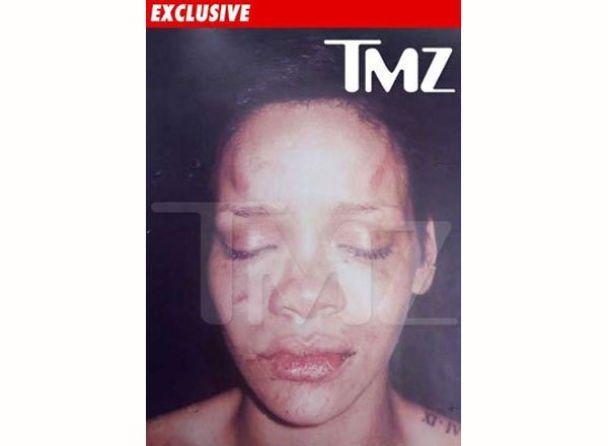 Фото побитої Ріанни потрапили в пресу