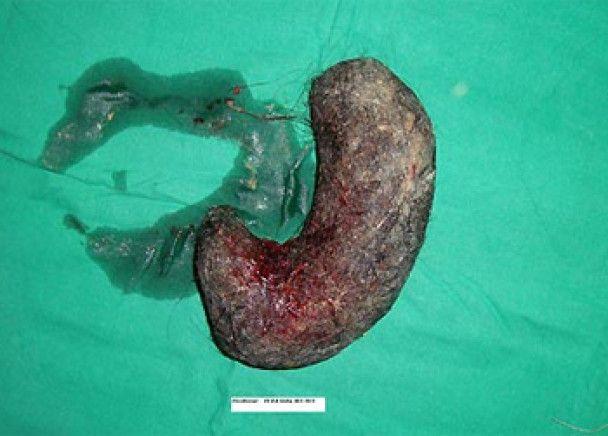 Топ-10 несподіваних знахідок хірургів