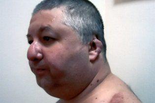 Депутата, якому відрізали вуха, посадили за замах на Кернеса і Добкіна