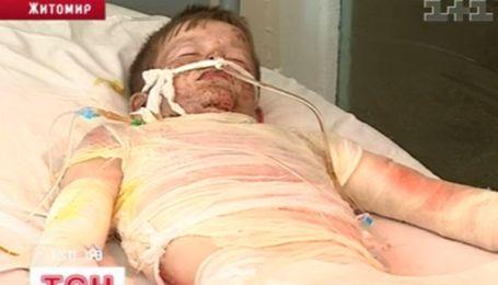 На Житомирщині струмом убило 11-ти річного хлопчика