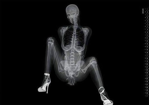 Еротика у рентгенівських променях