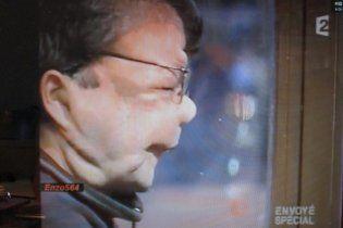 """Французькі хірурги повністю пересадили обличчя """"людині-слону"""""""