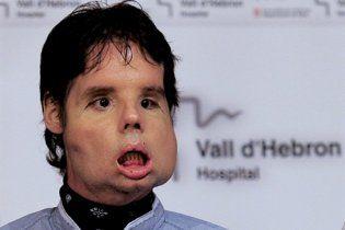 Іспанець, якому вперше повністю пересадили обличчя, постав перед журналістами