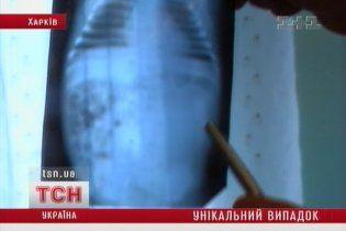 Українські лікарі врятували немовля з близнюком у животі