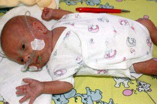 Немецкие врачи спасли младенца весом 275 граммов