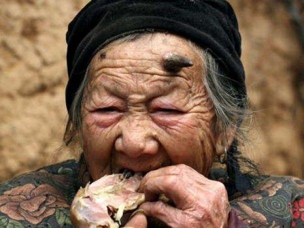 У 101-летней женщины начали расти рога