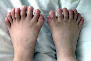 В Китае прооперировали мальчика с 31 пальцем