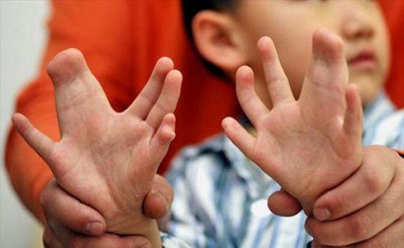 Хлопчик з 31 пальцем. Фото rockingfacts.com