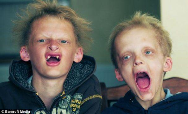 """В Британии живут двое малолетних братьев-""""вампиров"""""""