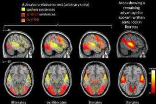 Ученые нашли ответственную за чтение часть мозга