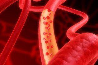 Пухлини утворюють власні кровоносні судини