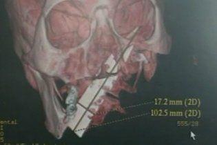 Китаец 4 года жил с 10-сантиметровым ножом в голове
