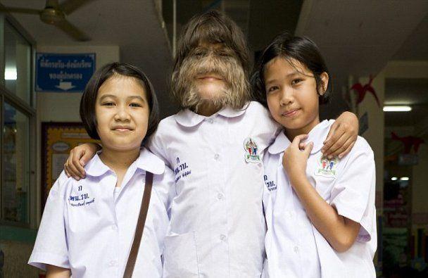 Найволохатіша дівчинка світу потрапила до Книги рекордів Гіннеса