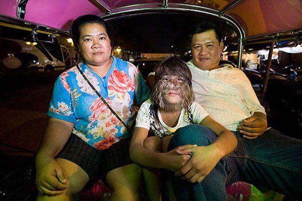 Найволохатіша дівчинка світу живе у Таїланді