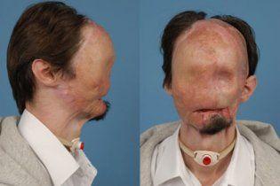 Американські хірурги повністю пересадили обличчя 25-річному чоловікові