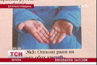 На Дніпропетровщині опікунка катувала прийомну дочку розпеченим залізом