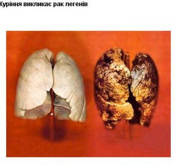 Кабмін затвердив страшні малюнки, через які українці кинуть курити